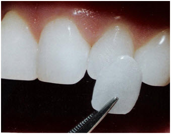 Dental Implant One Day Implant Full Mouth Implant Laser Tooth